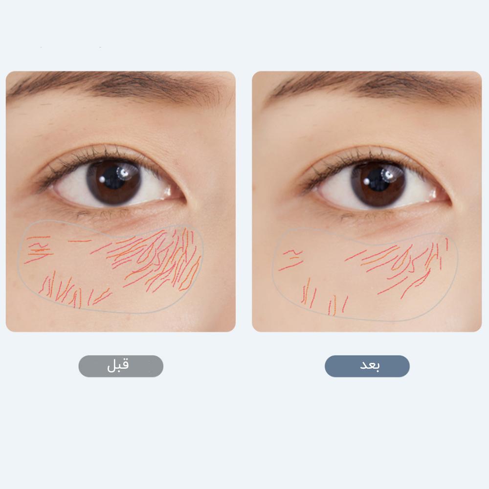 محصول شیائومی - xiaomi زیبایی چشم شیائومی wellskins مدل WX-SP500/501